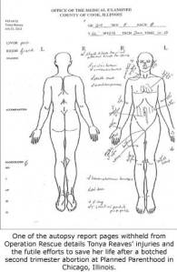 tonyareaves5autopsy