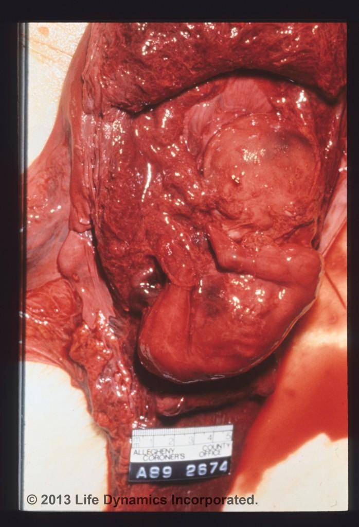 Unborn Autopsy Photo Marla's Babyphoto-41-698x1024