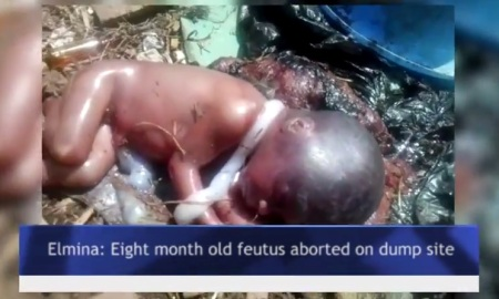 Fetus on dump site 3