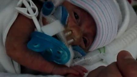 Jonathan Amos born at 23 weeks here is 3 weeks old