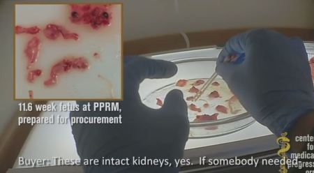 Aborted babies from CMP Planned Parenthood vid