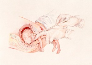 PBA-Partial-Birth-Abortion-.image_