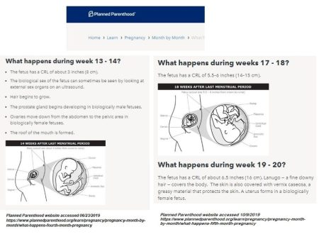 Image: Planned Parenthood fetal development at 13-14 and 17-20 weeks (Image: PPFA)